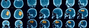 nöroloji cihazları tamiri